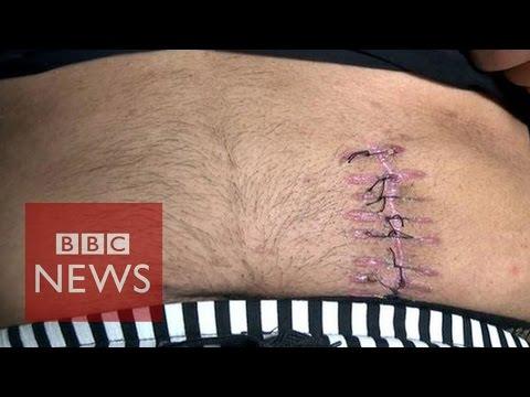 China organ trafficking: 'I sold my kidney for £4,000' – BBC News